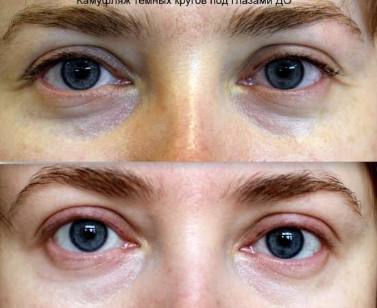 Перманентный макияж камуфляж синяков под глазами